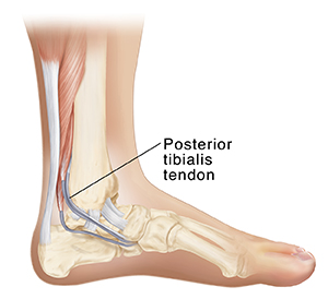 Side inside view of bones of lower leg and foot showing Achilles tendon and posterior tibialis tendon.